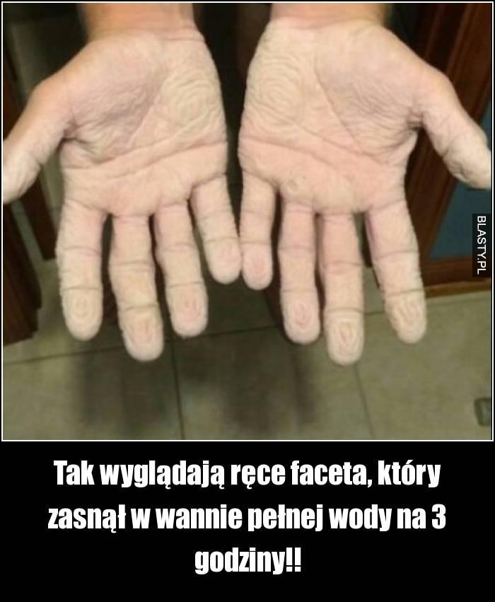 Tak wyglądają ręce faceta, który zasnął w wannie pełnej wody na 3 godziny!!