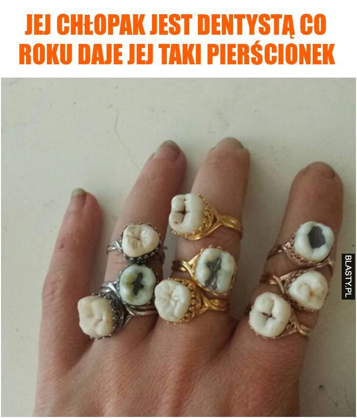 Jej chłopak jest dentystą co roku daje jej taki pierścionek