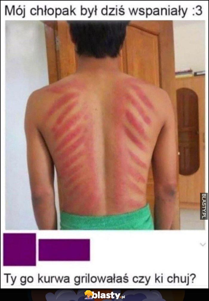 Mój chłopak był dziś wspaniały ślady na plecach, Ty go grillowałaś czy co?