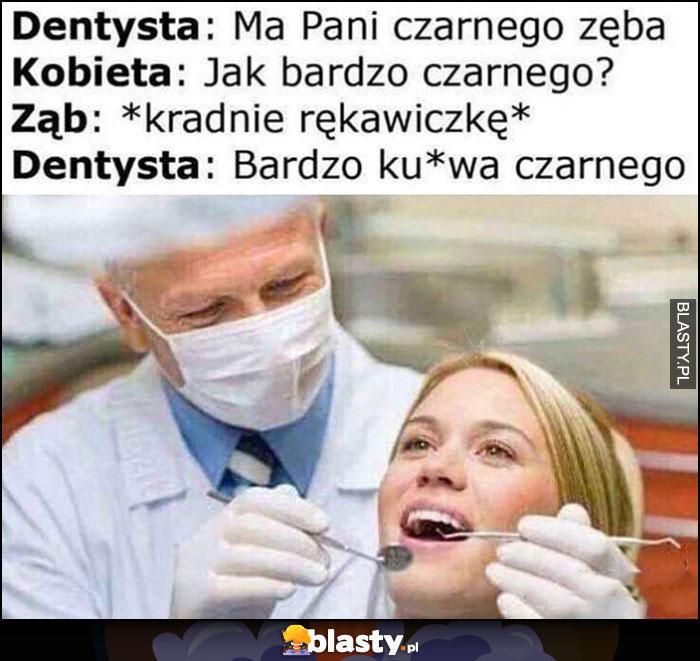 Dentysta: ma pani czarnego zęba, jak bardzo czarnego? Ząb kradnie rękawiczkę, dentysta: bardzo czarnego